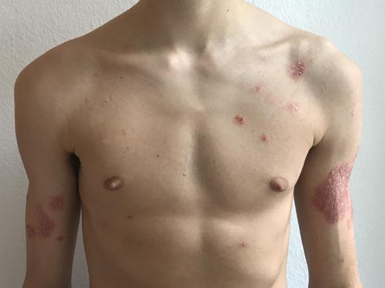 Schuppenflechte Behandlung mit TCM in München